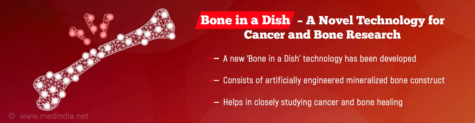 'Bone in a Dish' Opens New Avenues for Studying Cancer and Bone Healing