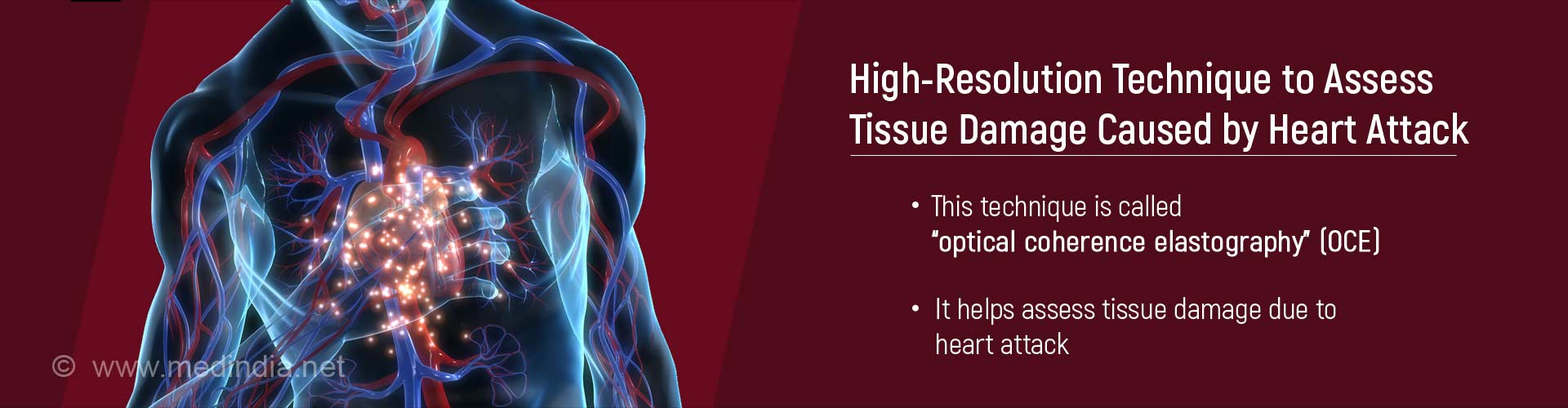 High-resolution technique to assess tissue damage caused by heart attack
