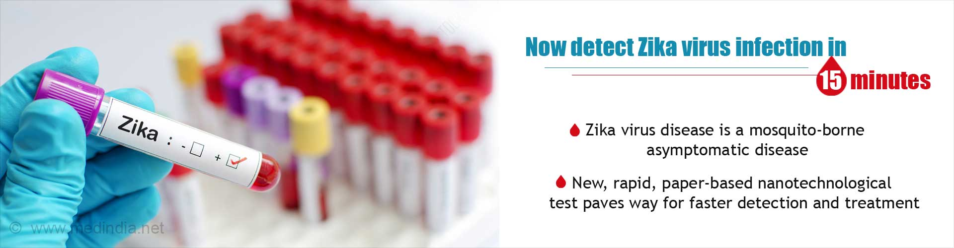 now detect zika virus infections in 15 minutes - zika virus disease is a mosquito-borne asymptomatic disease - new, rapid, paper-based nano technological test paves way for faster detection and treatment