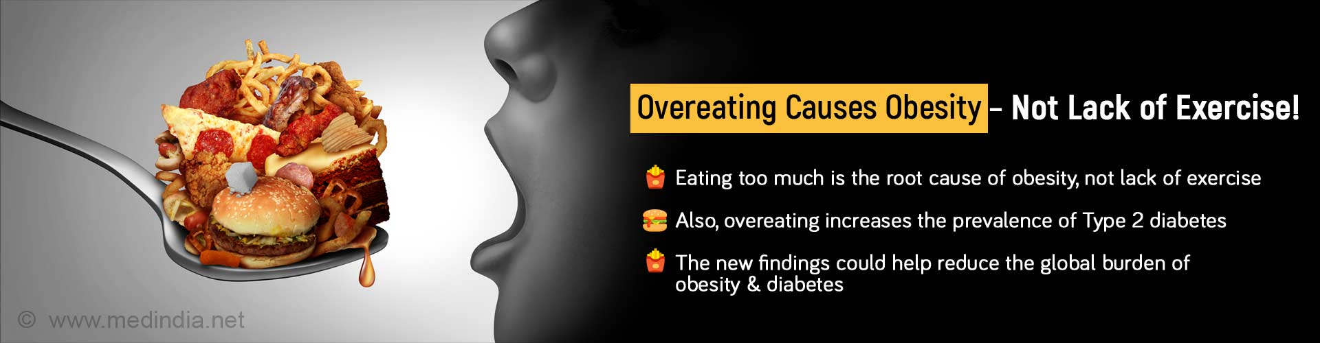 Overeating Causes Obesity, Not Lack of Exercise. Eating too much is the root cause of obesity, not lack of exercise. Also, overeating increases the prevalence of Type 2 diabetes. The new findings could help reduce the global burden of obesity and diabetes.