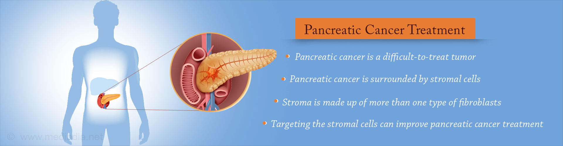 Possible New Avenues in Pancreatic Cancer Treatment