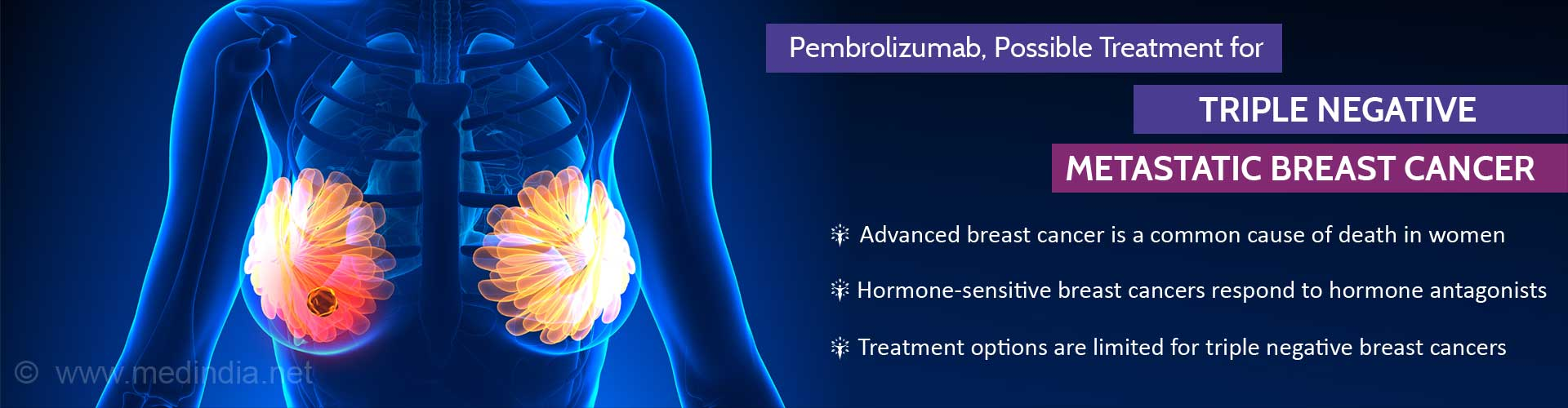 Pembrolizumab in Triple Negative Metastatic Breast Cancer