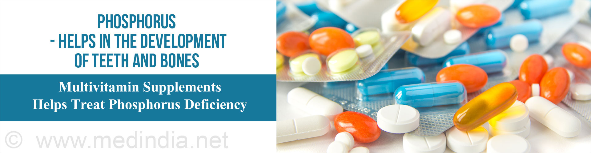Phosphorous - Helps in the Development of Teeth and Bones - Multivitamin Supplements Help Treat Phosphorous Deficiency