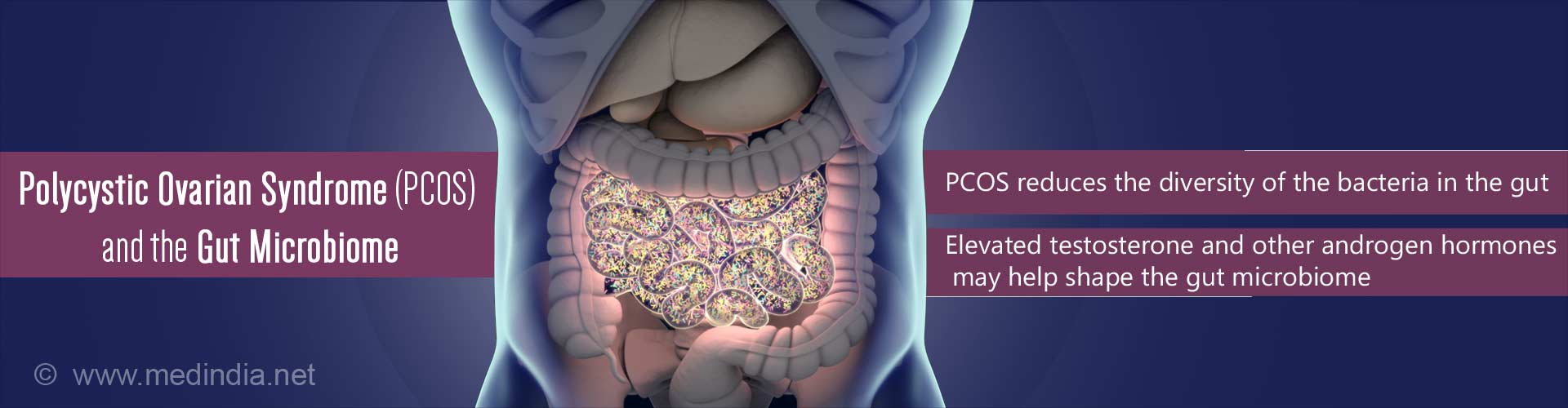 Polycystic ovarian syndrome (PCOS) and the gut microbiome - PCOS reduces the diversity of the bacteria in the gut - elevated testosterone and other androgen hormones may help shape the gut microbiome