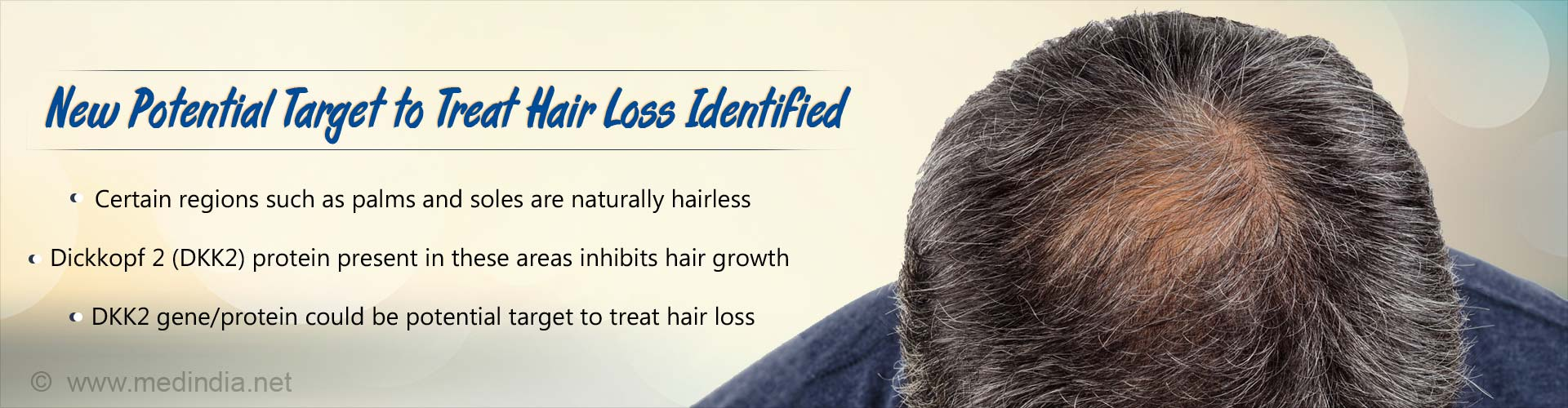 New potential target to treat hair loss identified. Certain regions such as palms and soles are naturally hairless. Dickkopf 2 (DKK2) protein present in these areas inhibits hair growth. DKK2 gene/protein could be potential target to treat hair loss.