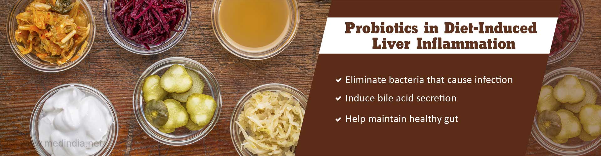 Probiotics Can Help Kick Off Liver Inflammation Due To Fatty Diet