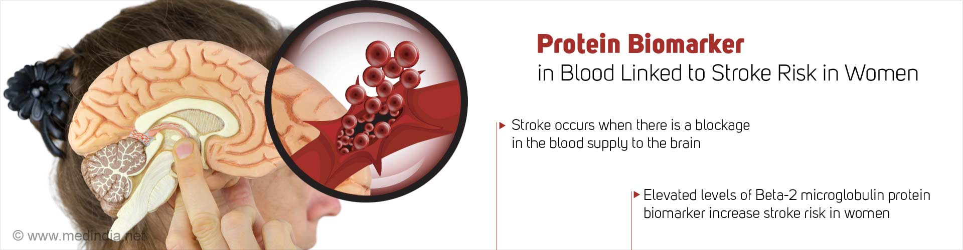 Could High Levels of Protein Biomarker be Linked to Stroke Risk in Women?
