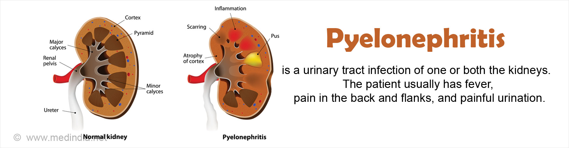 pyelonephritis   causes symptoms diagnosis treatment