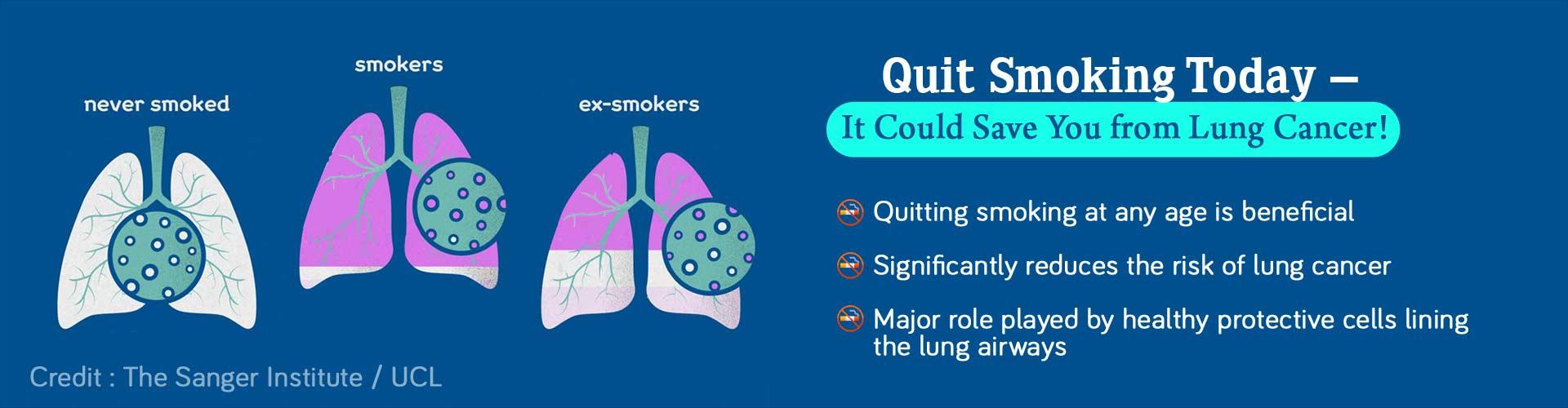 Quit Smoking Today â€