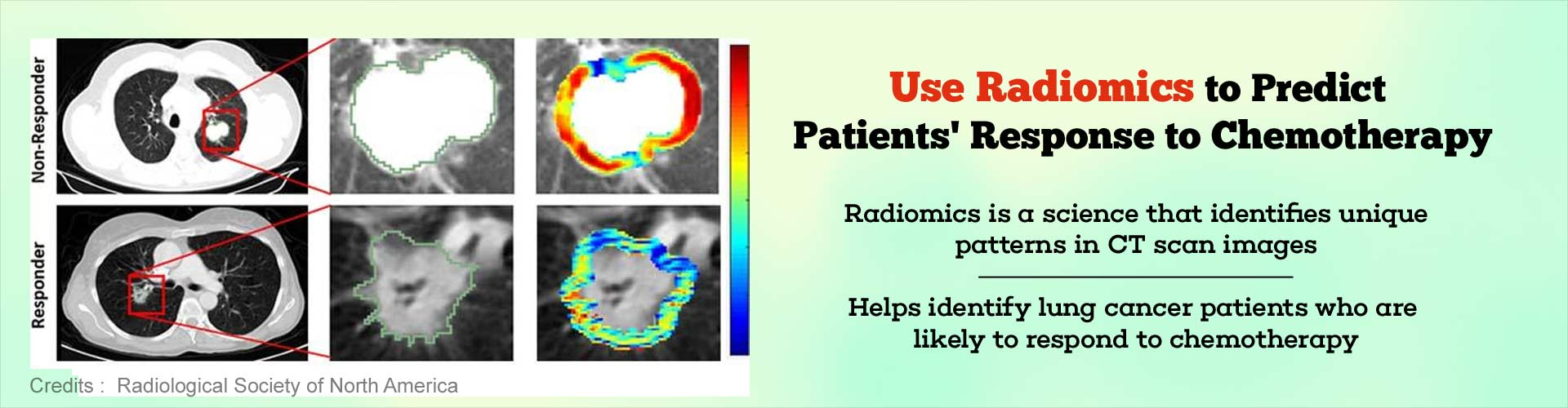 Use Radiomics to predict patients' response to chemotherapy. Radiomics is a science that identifies unique patterns in CT scan images. Helps identify lung cancer patients who are likely to respond to chemotherapy.