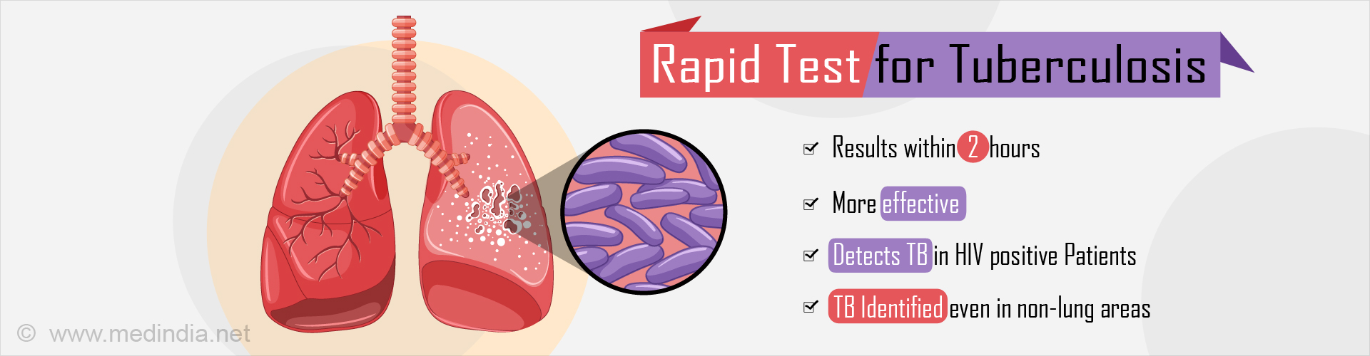 Rapid Test for Tuberculosis