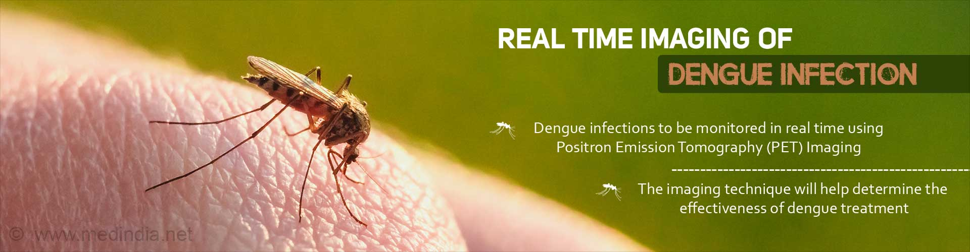 Dengue  Real Time Imaging Helps Monitor Progression of Infection