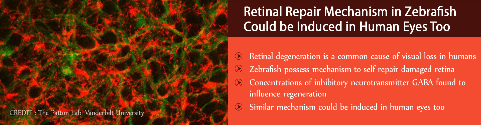 Retinal Regeneration Mechanism in Zebrafish Could be Induced in Human Eyes