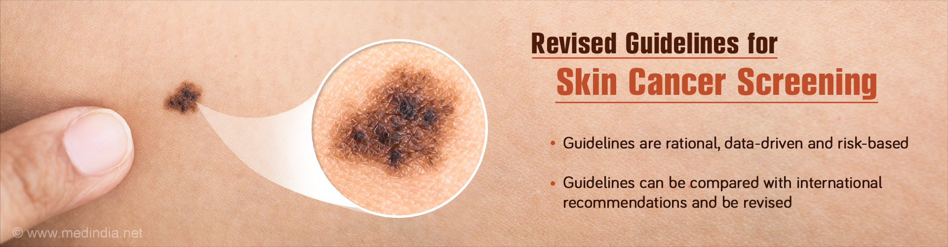 Skin Cancer Screening : Data-Driven Guidelines Proposed