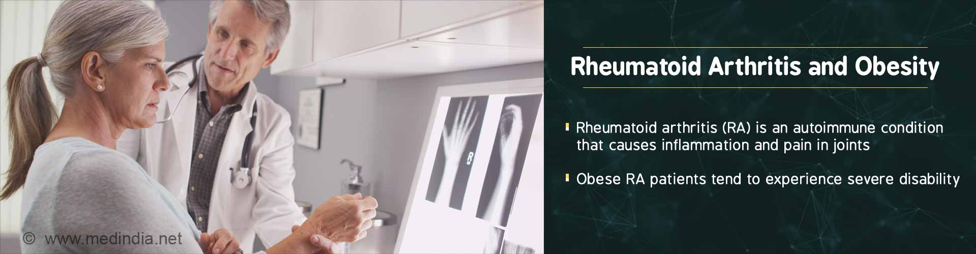 Obesity in Rheumatoid Arthritis Patients Might Hasten Disability