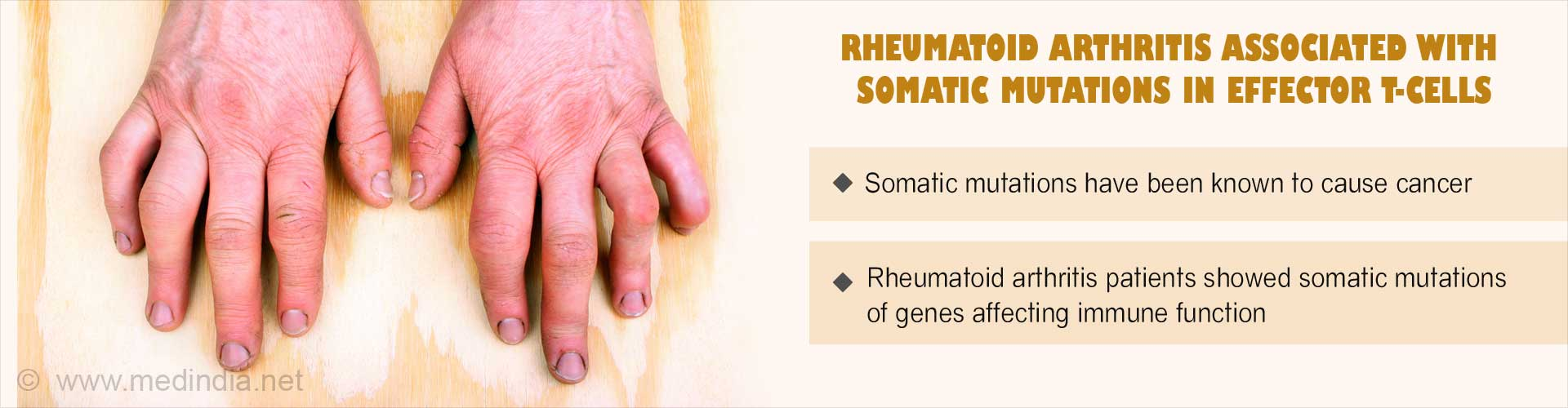 Rheumatoid Arthritis: Somatic Mutations In Mature T-Cells Unearthed