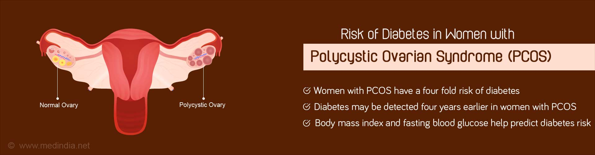 What Causes Diabetes in Women With Polycystic Ovarian Syndrome?