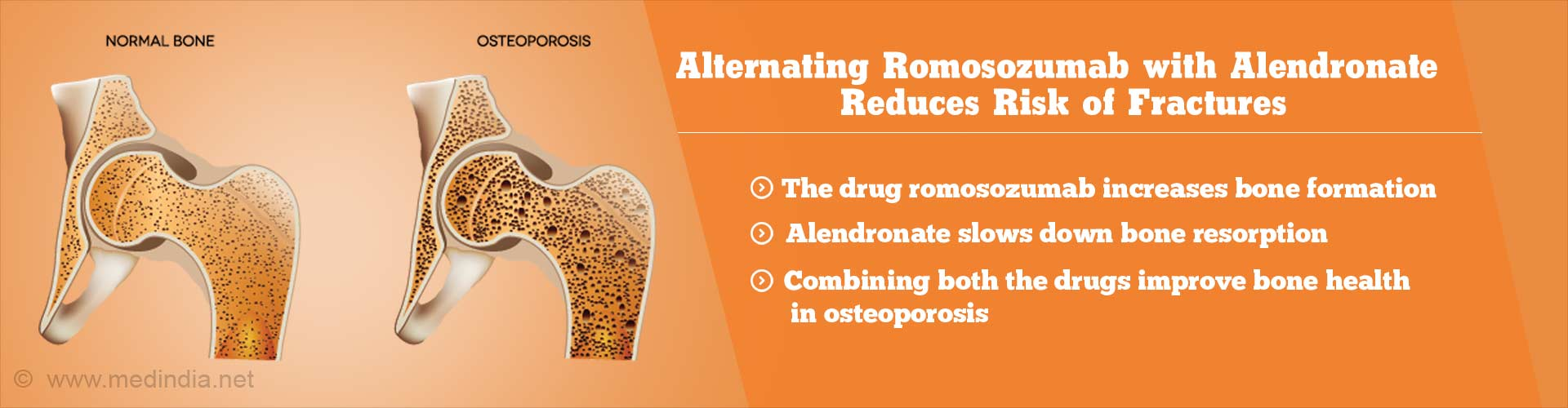 Fractures In Osteoporosis Patients Can Be Reduced With This Drug
