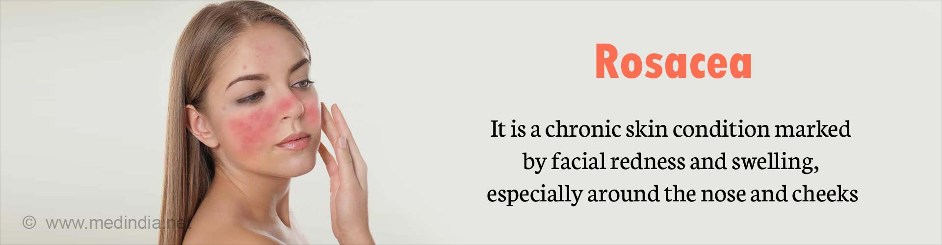 Rosacea - It is a chronic skin condition marked by facial redness and swelling, especially around the nose and cheeks