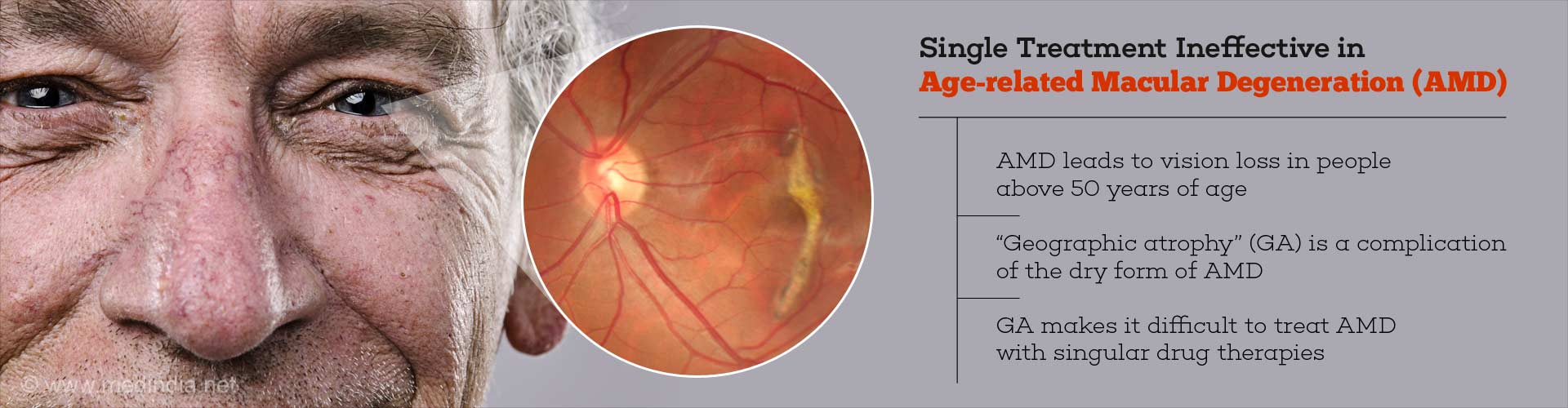 Single treatment ineffective in Age-related Macular Degeneration (AMD) - AMD leads to vision loss in people above 50 years of age -