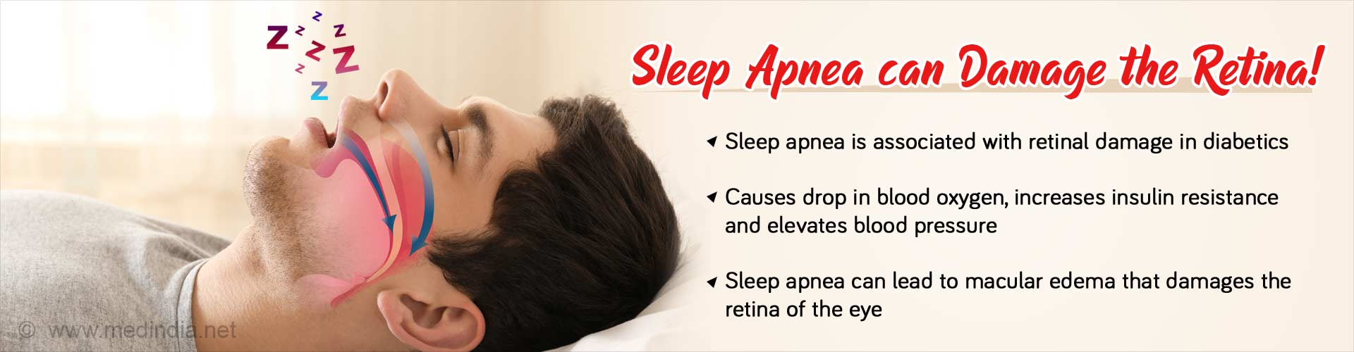 Sleep Apnea Linked to Diabetic Retinopathy