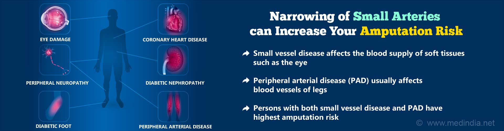 Narrowing of small arteries can increase your amputation risk. Small vessel disease affects the blood supply of soft tissues such as the eye. Peripheral arterial disease (PAD) usually affects blood vessels of legs. Persons with both small vessel disease and PAD have highest amputation risk.