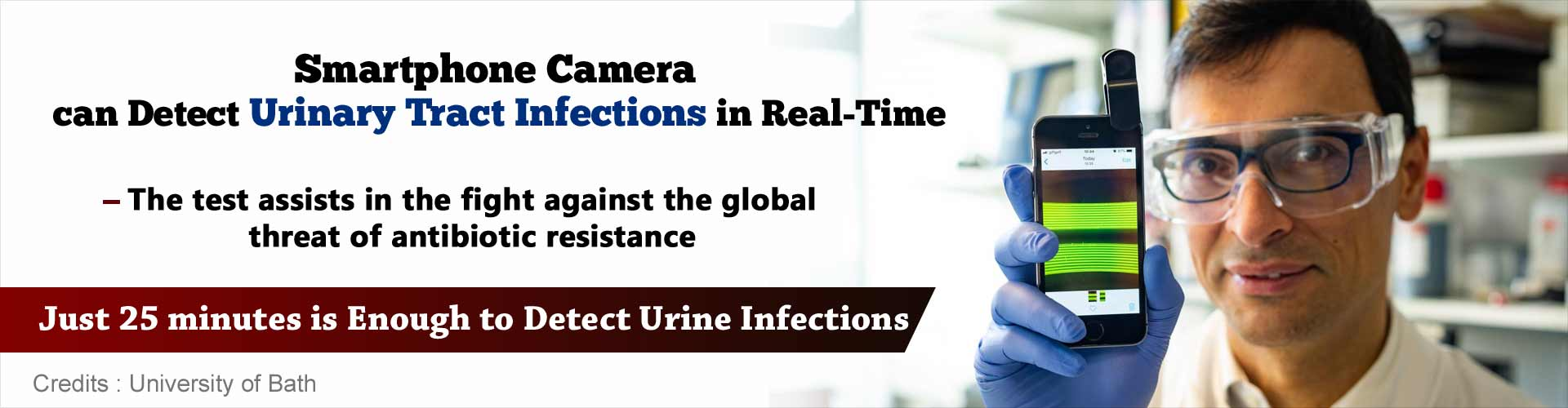 Smartphone camera can detect Urinary Tract Infections in real-time. The test assists in the fight against the global threat of antibiotic resistance. Just 25 minutes is enough to detect urine infections.