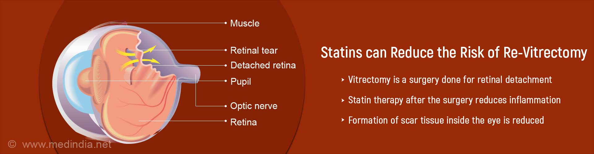Statins Can Help Prevent Scar Tissue After Eye Surgery