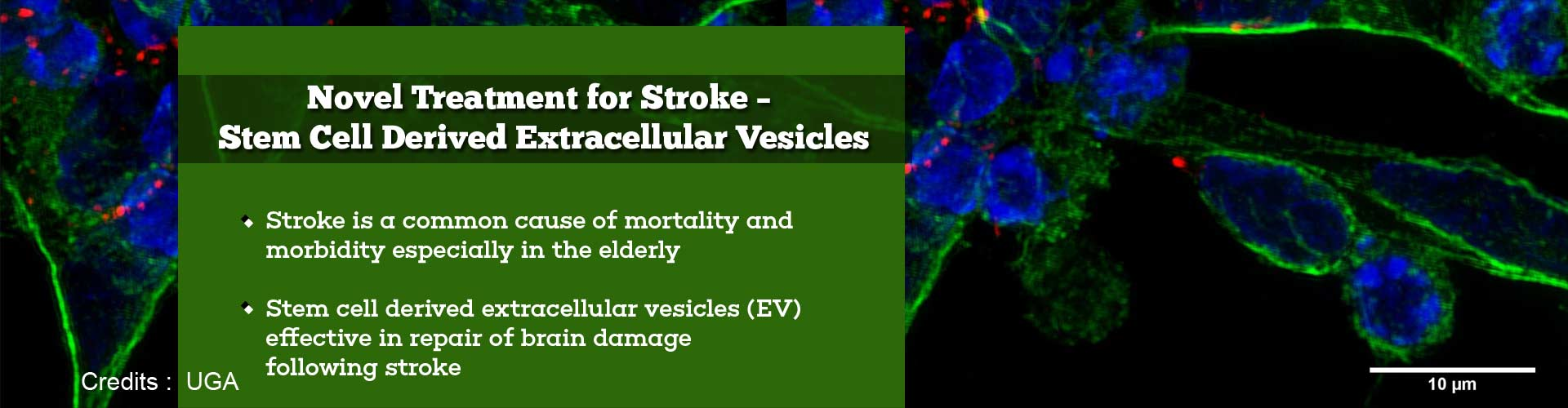 New Stem Cell-Based Treatment Accelerates Brain Tissue Healing In Stroke