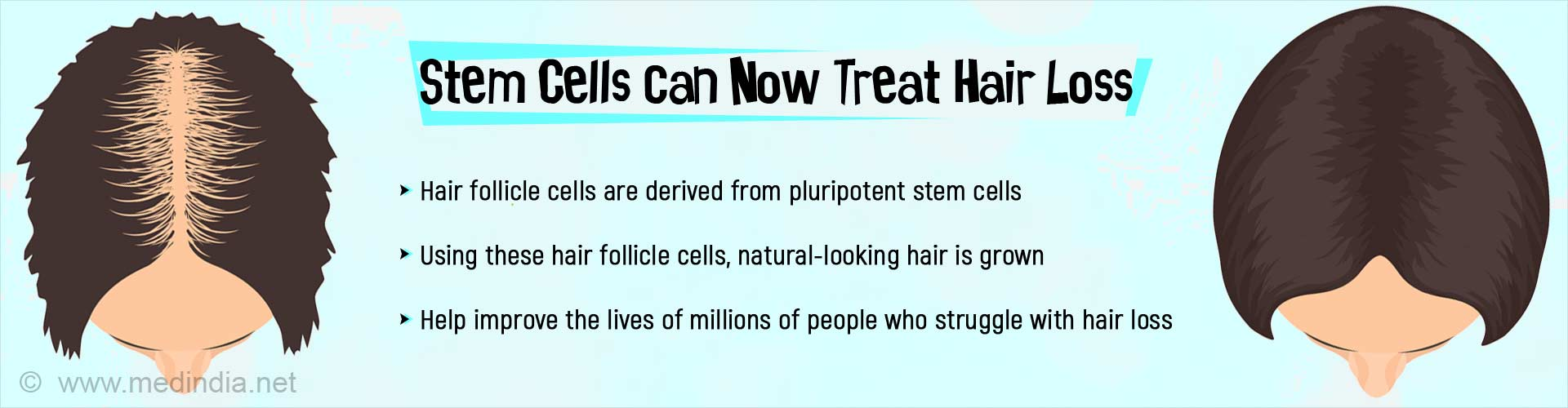 Natural Looking Hair Made From Stem Cells