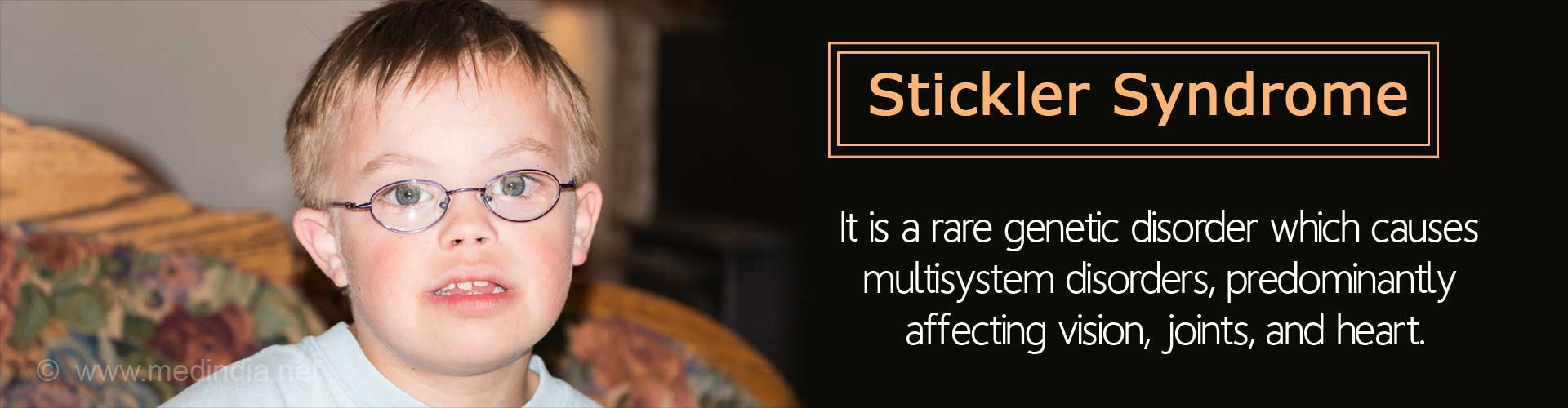 Stickler Syndrome - It is a rare genetic disorder which causes multisystem disorders, predominantly affecting vision, joints, and heart