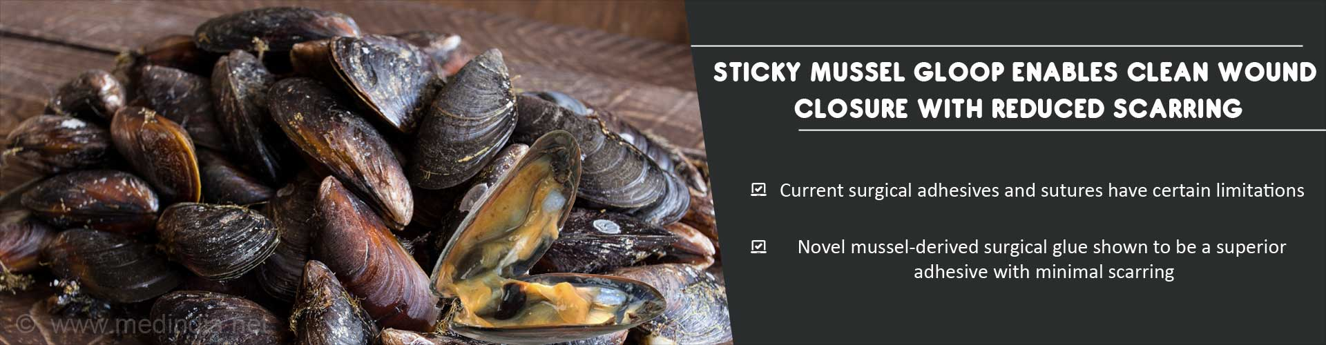 Sticky mussel gloop enables clean wound closure with reduced scarring - Current surgical adhesives have certain limitations - Novel mussel-derived surgical glue shown to be superior adhseive with minimal scarring