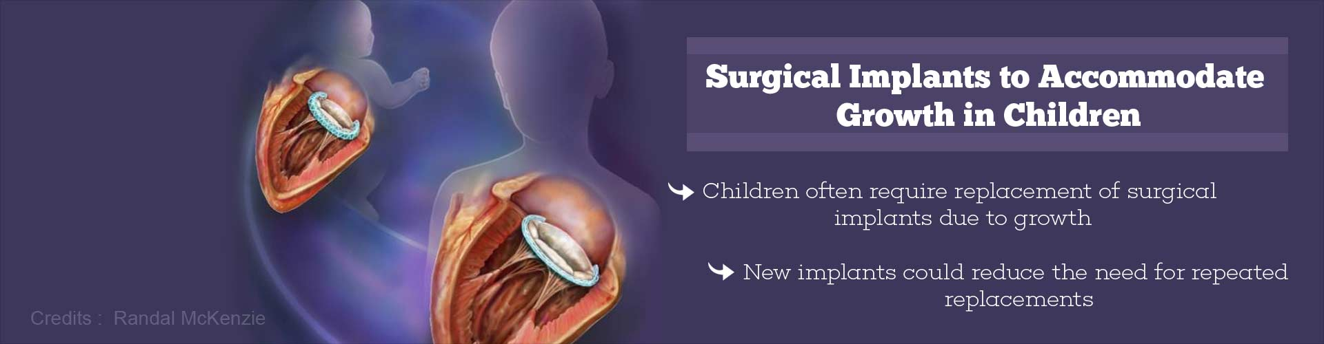 Surgical implants to accommodate growth in children - Children often require replacement of surgical implants due to growth - New implants could reduce the need for repeated replacements
