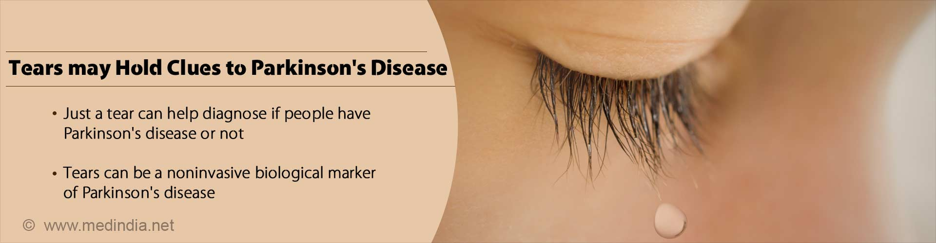 tears may hold clues to parkinson's disease - just a tear can help diagnose of people have parksinson's disease or not - tears can be a noninvasive biological marker of parkinson's disease