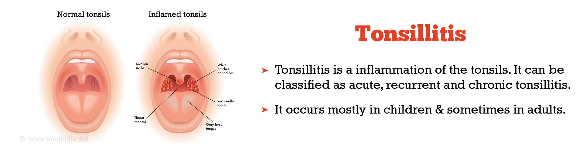 Cover Your Mouth With a Tissue or the Elbow When You Cough or Sneeze to Prevent Tonsillitis