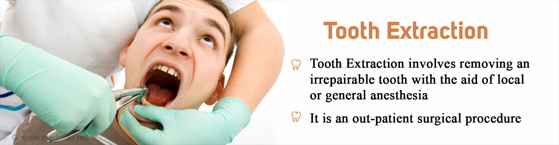 Tooth Extraction - Tooth extraction is an out-patient surgical procedure - It involves removing an irreparable tooth with the aid of local or general anesthesia