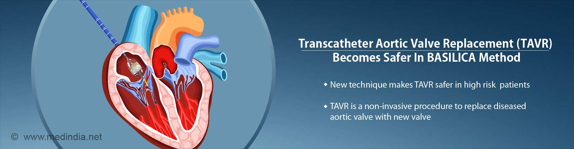 transcatherter aortic valve replacement (TAVR) becomes safer in BASILICA method - new technique makes TAVR safer in high risk patients - TAVR is a non-invasive procedure to replace diseased aortic valve woth new valve