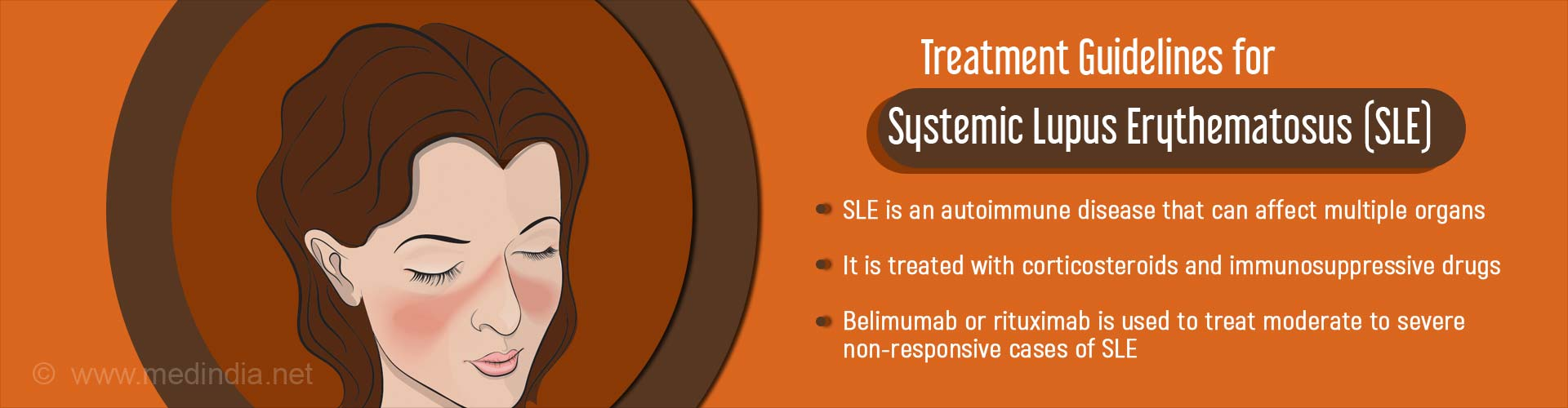 Treatment guidelines for systemic lupus erythematosus (SLE)