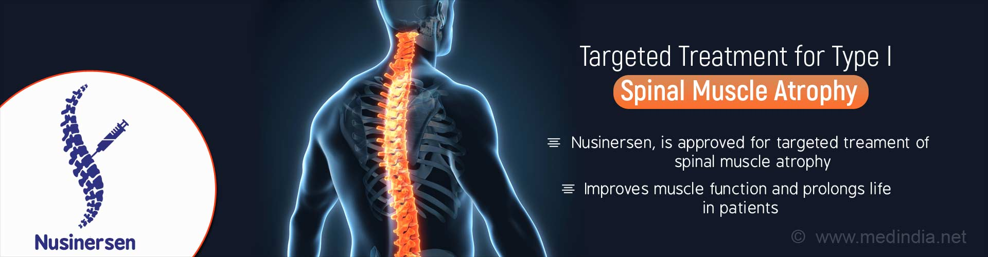 Targeted treatment for type 1 spinal muscle atrophy