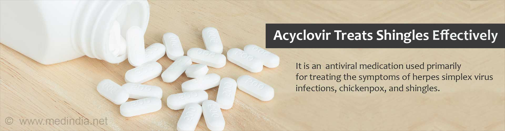 Acyclovir treats shingles effectively