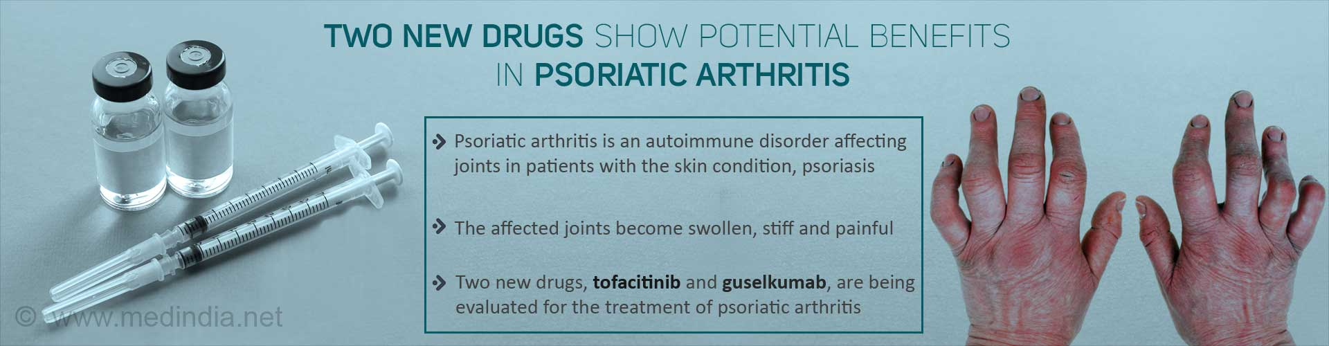 New Drugs Show Potential in Benefiting Psoriatic Arthritis Patients