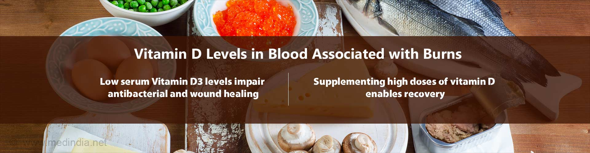Vitamin D Levels Associated With Wound Healing in Burns