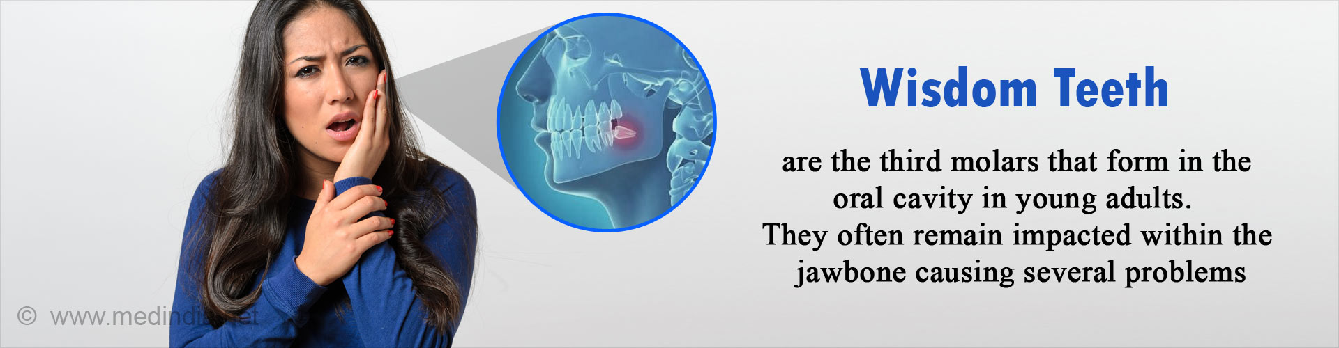 Wisdom Teeth - Symptoms, Signs, Complications & Treatment