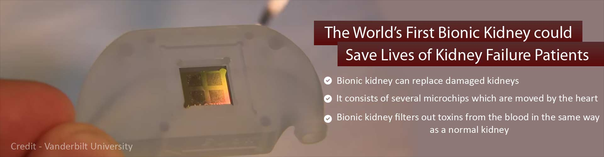 The World's First Bionic Kidney could save lives of kidney failure patients