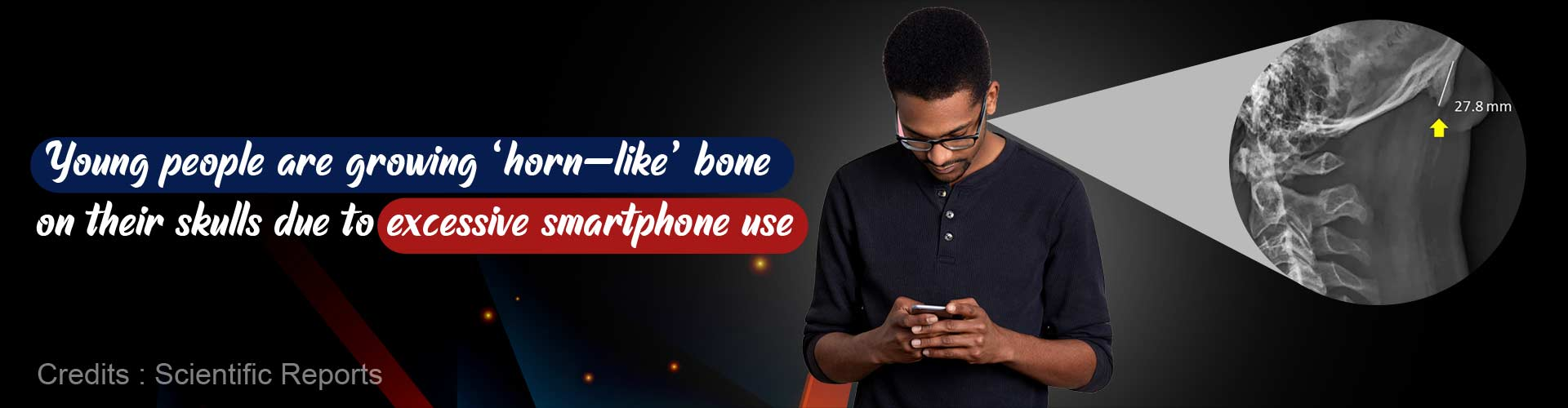 Young people are growing ''horn-like'' bone on their skulls due to excessive smartphone use.
