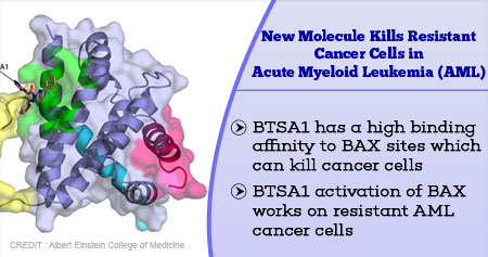 Health Tip on New Molecule that Kills Resistant Cancer Cells in Acute Myeloid Leukemia