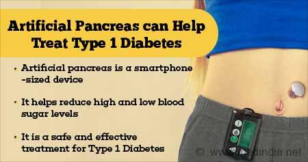 Health Tip on Artificial Pancreas 'to Treat Type 1 Diabetes