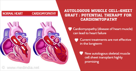 Health Tip on New Therapy For Cardiomyopathy