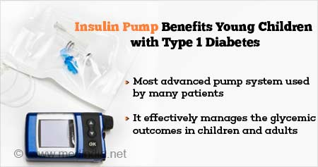Health Tip on Benefits of Insulin Pump in Children With Type 1 Diabetes