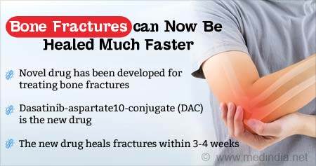 New Targeted Therapy for Bone Fractures Developed